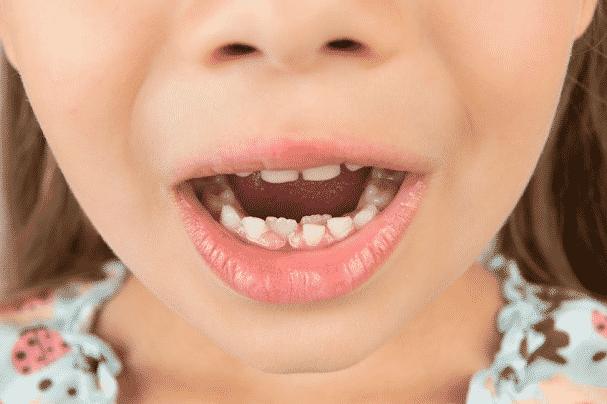 dygsta priekiniai dantys
